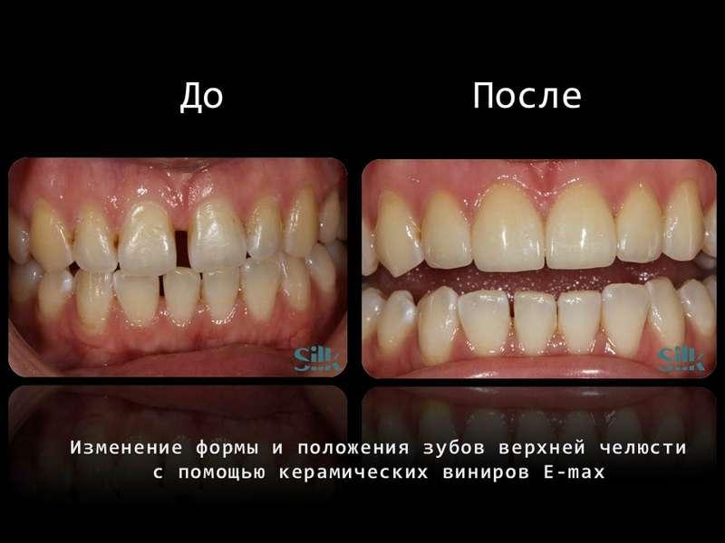 Реставрация зубных рядов керамическими винирами E-max