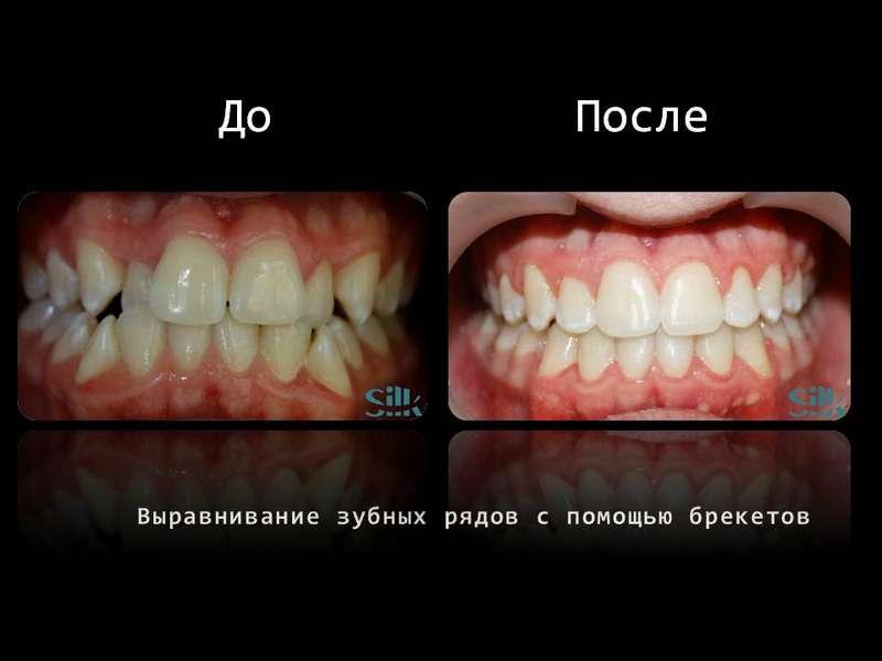 Выравнивание зубных рядов с помощью брекетов