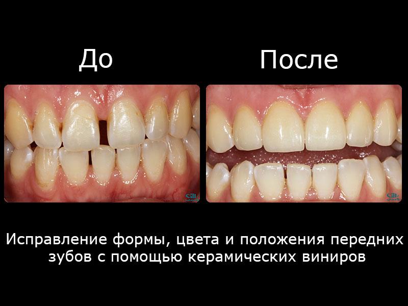 Исправление формы, цвета и положения передних зубов с помощью керамических виниров