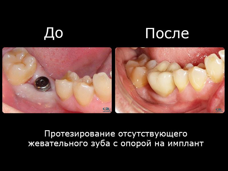 Протезирование отсутствующего жевательного зуба с опорой на имплант