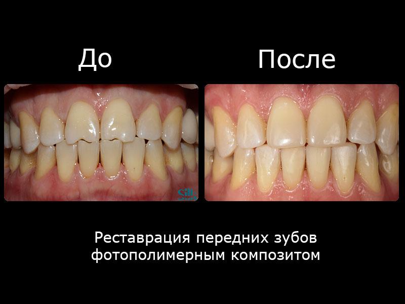Реставрация передних зубов фотополимерным композитом